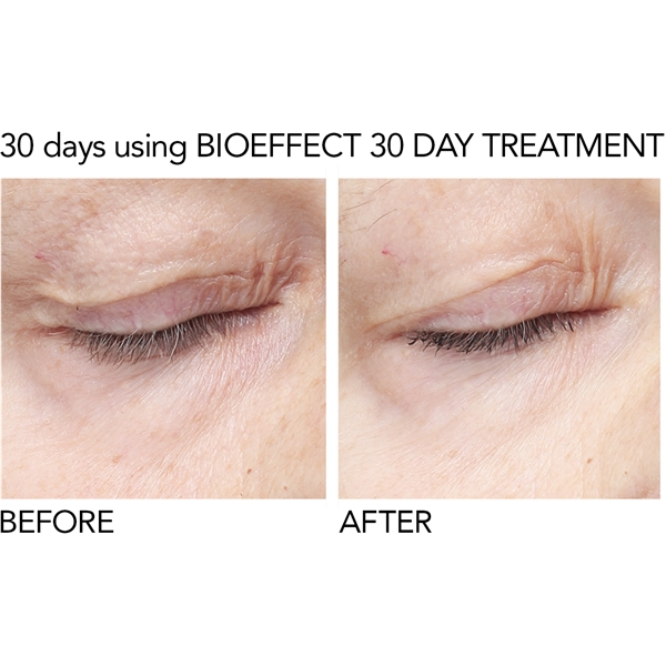 BioEffect EGF Eye Serum (Bild 4 av 6)