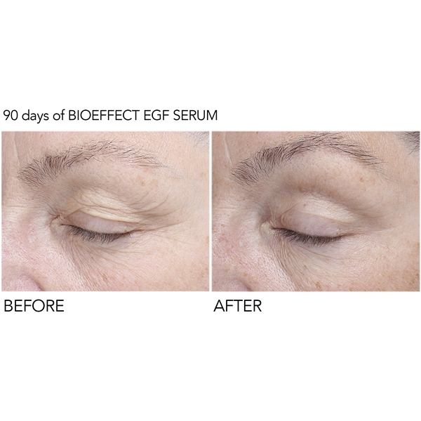 BioEffect EGF Eye Serum (Bild 5 av 6)
