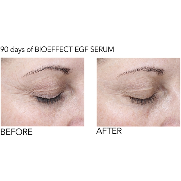 BioEffect EGF Eye Serum (Bild 6 av 6)